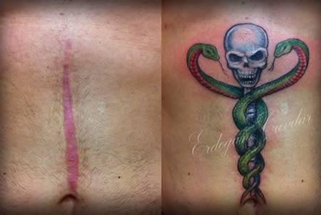 a98541_tattoo-scars_10