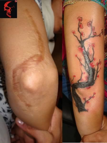 a98541_tattoo-scars_11