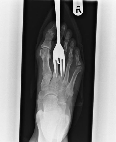 X-Rays-10