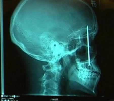 X-Rays-11