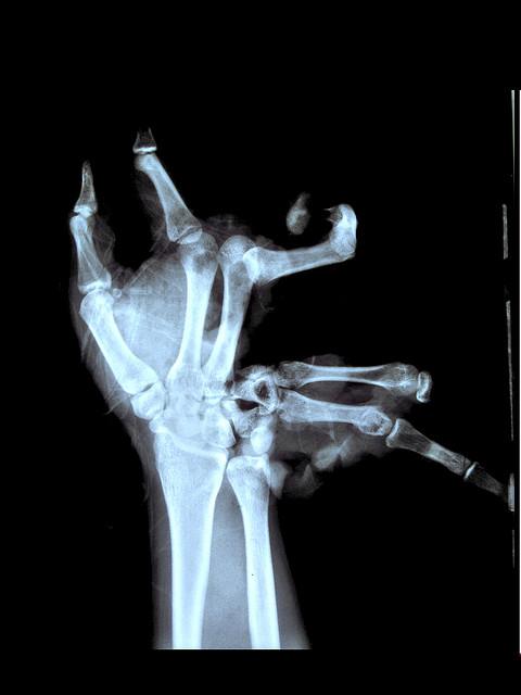 X-Rays-21