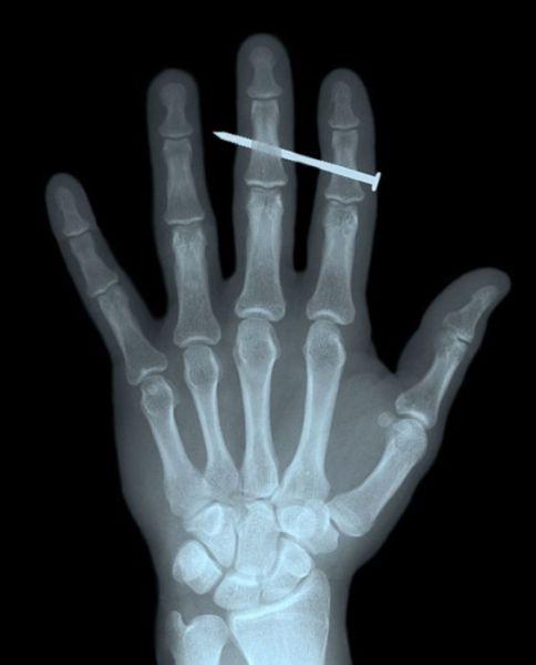 X-Rays-8
